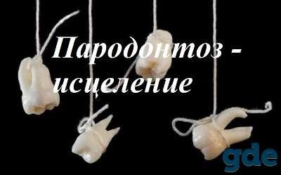 Пародонтоз - уникальный метод исцеления, фотография 1