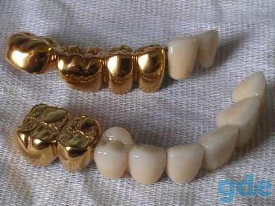 Вакуумные установки для нанесения покрытий  под золото  на зубные протезы из Беларуси, фотография 6